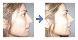 nose secret before and after