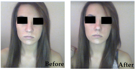 nosesecret-before-after