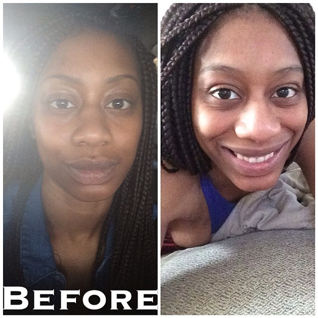 how to change your nose without surgery