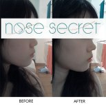 nosesecret before and after small nose