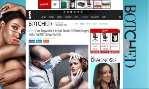 Nosesecret-Plastic-surgery1